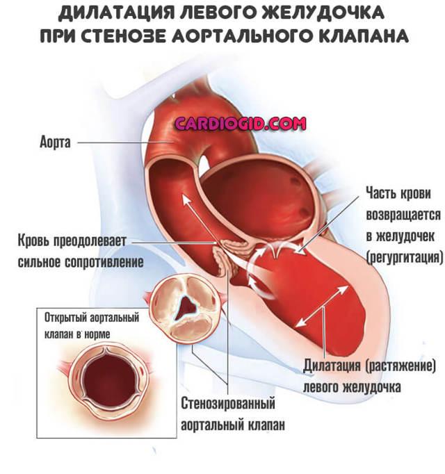 Стеноз аорты: симптомы и медикаментозное лечение