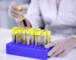 Анализ крови на гормоны в Москве - цены