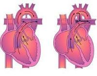 Незаращение боталлова протока у взрослых. Открытый артериальный Боталлов проток (ОАП): причины незаращения у детей, симптомы, как лечить