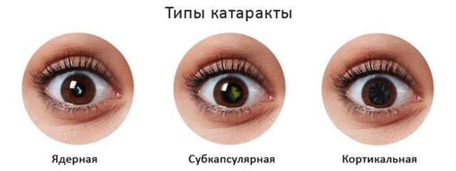 Катаракта - причины, симптомы, профилактика и лечение без операции в Москве
