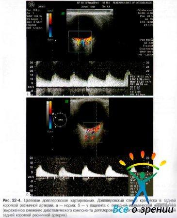 Передняя ишемическая нейропатия