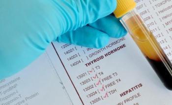 Что такое ТТГ гормон - подготовка к анализу крови