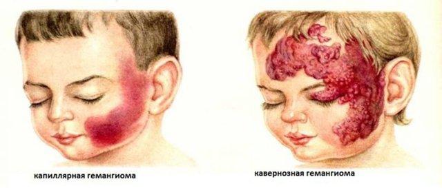 Гемангиома у новорожденных детей: причины возникновения, лечение, последствия
