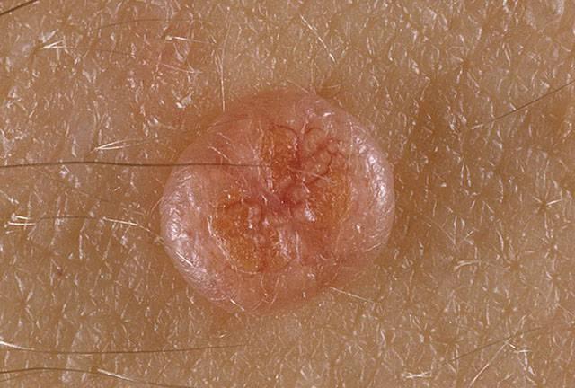 Контагиозный моллюск - фото у женщин, причины, симптомы
