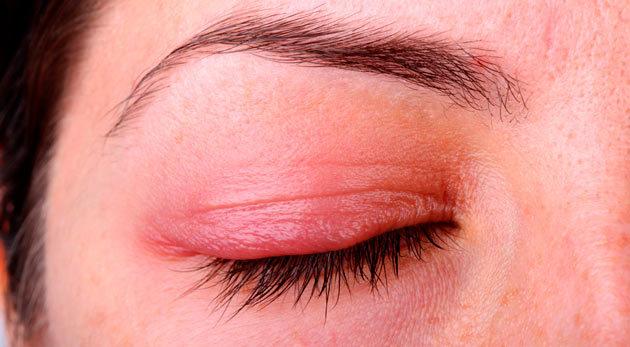 Блефарит – причины, симптомы и лечение блефарита век (фото)