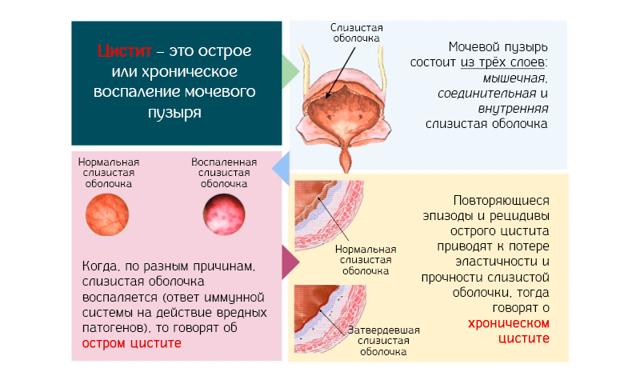 Хронический цистит у женщин: симптомы и лечение