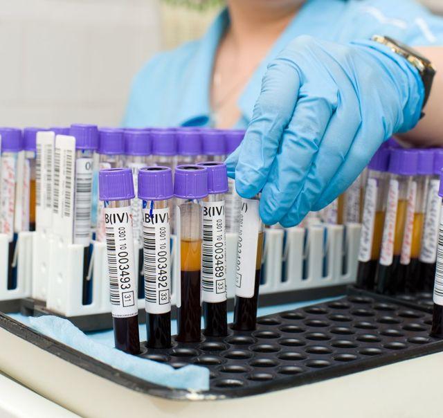 Антистрептолизин о повышен: причины, симптомы, лечение