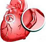 ИБС сердца: симптомы и лечение, причины и профилактика, прогноз