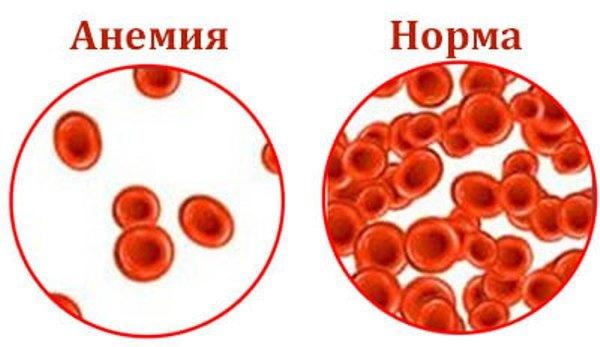 Гемолитическая анемия – виды, симптомы и лечение