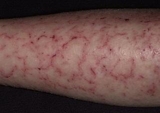 Сухая экзема на руках и ногах: лечение, 8 фото с описанием, причины, симптомы, профилактика