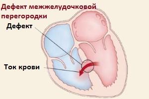 Врожденный порок сердца у новорожденных детей: что это, причины, последствия, классификация и лечение