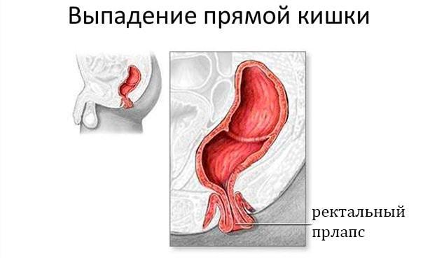 Выпал геморроидальный узел