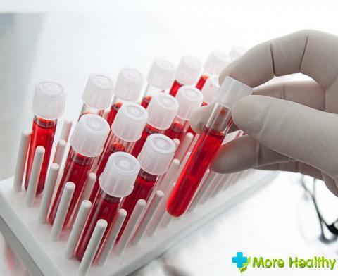 Анализ крови ПТИ. Что это за исследование?