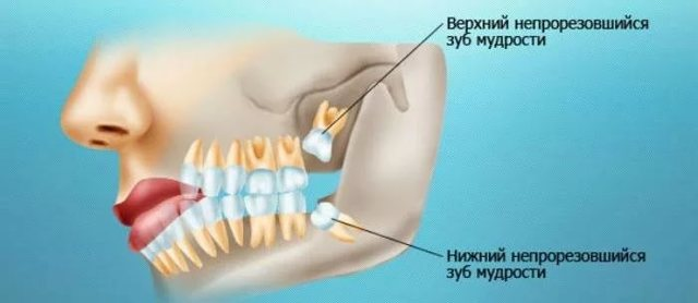Перикоронарит зуба мудрости - формы, симптомы и лечение