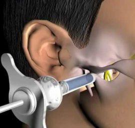 Анестезия в стоматологической практике: разновидности, показания, противопоказания, современные препараты для местного обезболивания и наркоза