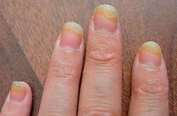 Грибок ногтей на руках: причины, лечение, фото начальной стадии