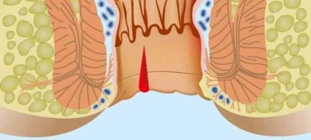 Кровотечение из прямой кишки: причины и что делать при выделении крови без боли