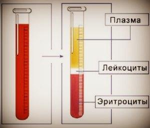 Таблица норм соэ в крови у женщин после 50 лет