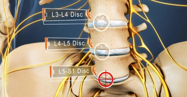 Грыжа диска L5 и S1: что это, причины, симптомы