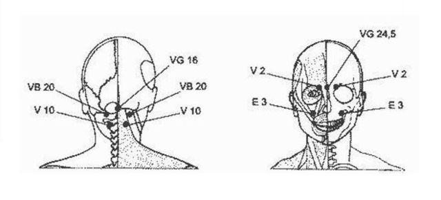 Головная боль в области лба и глаз: причины и лечение