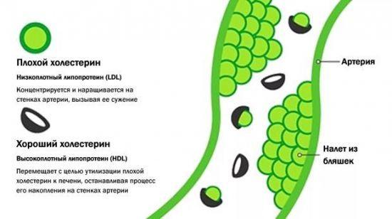 Повышенный холестерин в крови: что это значит. Причины и симптомы. Как снизить холестерин ( отзывы)