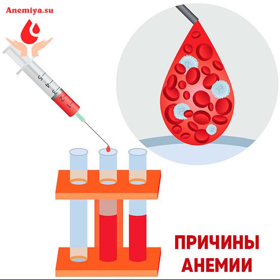 Анемия 2 степени - что это такое, симптомы и лечение