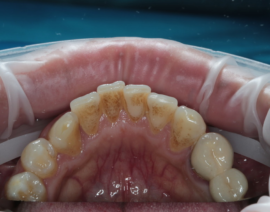 Зубной камень – фото, причины, удаление камней на зубах