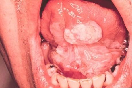 Лейкоплакия полости рта - веррукозная, мягкая, плоская лейкоплакия слизистой оболочки - симптомы и лечение - фото