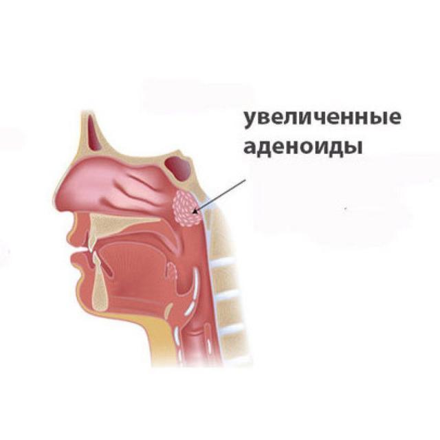 Лимфомиозот - инструкция по применению для детей при аденоидах, отзывы о препарате Лимфомиозот