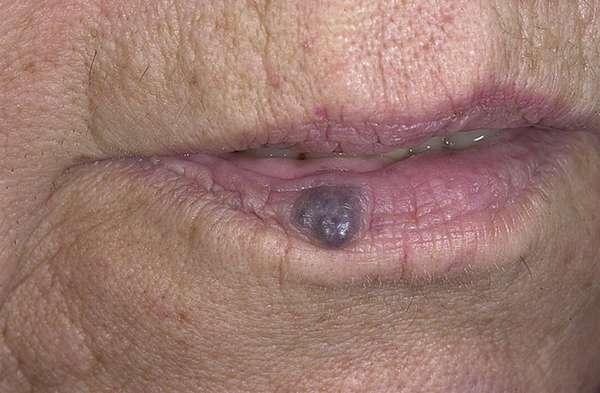 Гемангиома у взрослых на губе: причины и лечение. Гемангиома на губе у взрослых и детей: причины, лечение