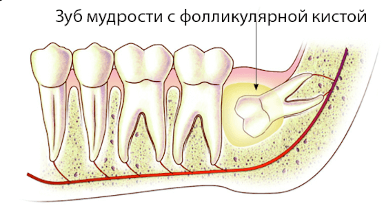 Киста зуба — причины, признаки и симптомы, лечение