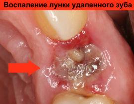 Болит десна после удаления зуба – как быть и что делать