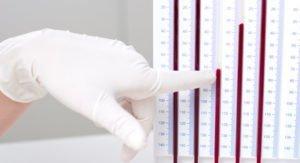 Норма и повышенный уровень роэ в крови у женщин