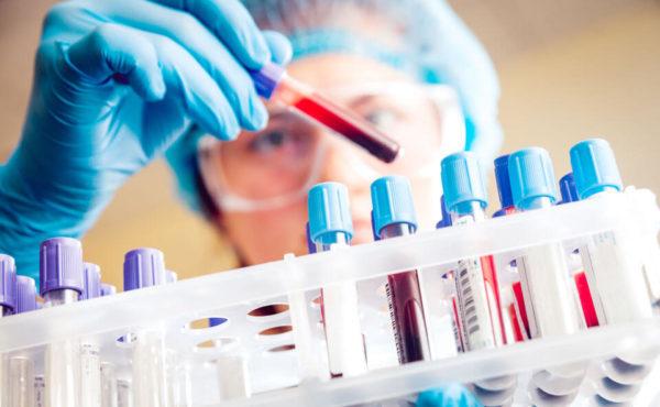 Что значит повышенные лимфоциты в крови у женщин
