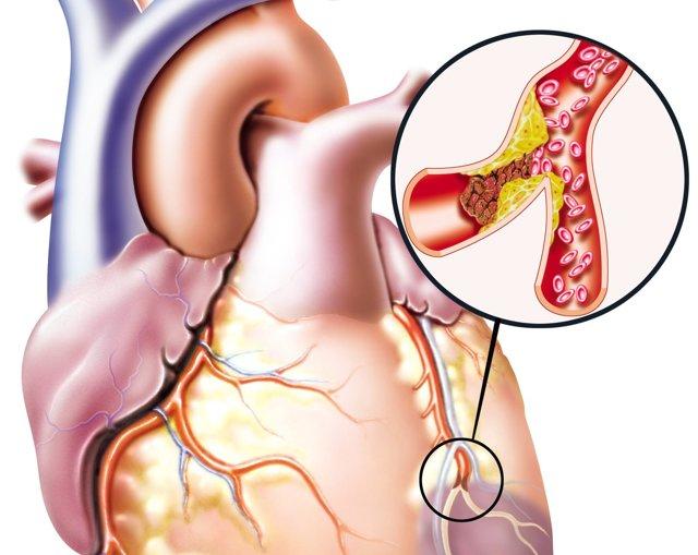Атеросклероз сосудов сердца