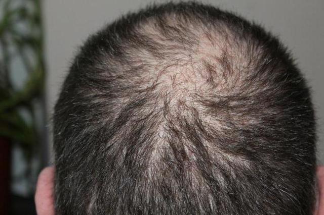 Сифилис - фото симптомы и лечение, первые признаки и виды