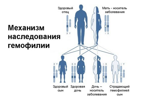 Гемофилия: ген, признаки и лечение. Гемофилия у детей и взрослых.