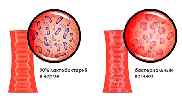 Бактериальный вагиноз - причины, симптомы, диагностика и лечение