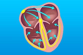 Замирание сердца причины и симптомы