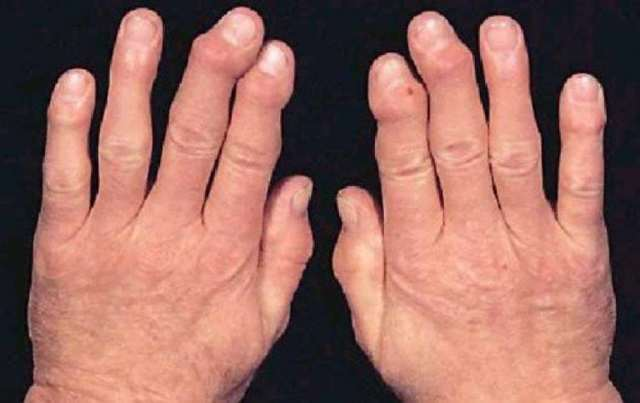 Бруцеллез: что это, симптомы у человека, лечение, диагностика