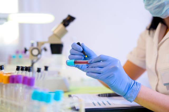 Анализ на сахарный диабет: какие анализы нужно сдавать для обнаружения сахарного диабета