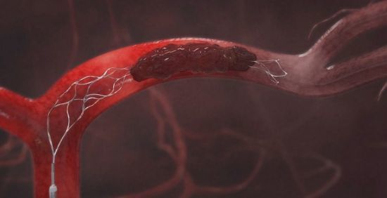 Повышенный гемоглобин в крови - 10 способов снизить. Причины у женщин и мужчин
