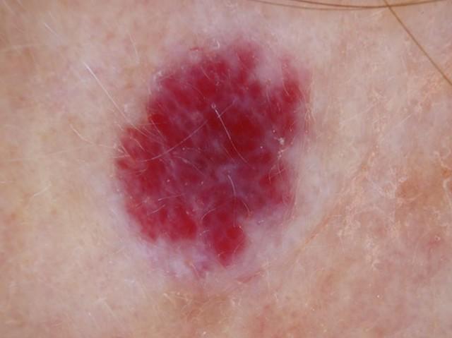 Ангиома головного мозга - Здоровая кожа