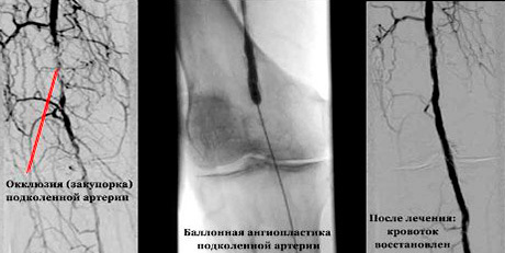 Артерии: роль и функция. Болезни артерий