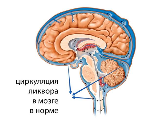 Внутричерепное давление: симптомы и лечение у взрослых ...