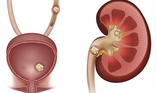 Мочекаменная болезнь симптомы и лечение у мужчин