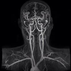 Цена ангиографии, стоимость ангиографии сосудов головного мозга в Москве