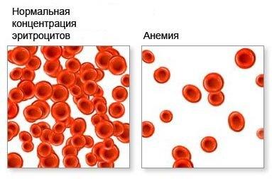 Анемия - формы, лечение, причины, симптомы, диагностика