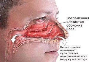 Гиперемирована слизистая желудка: что это значит, причины, лечение. Зев гиперемирован что значит