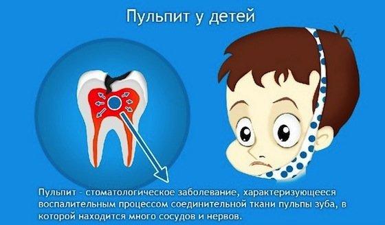 Пульпит зуба: симптомы, причины, лечение